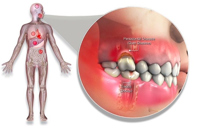 Oral Health And Overall Health 27